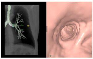 Lung Analysis